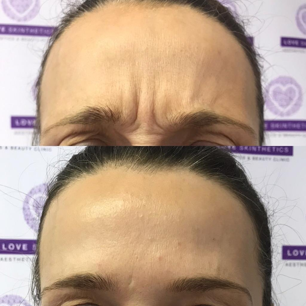 Before and after anti-wrinkle treatments in Huddersfield