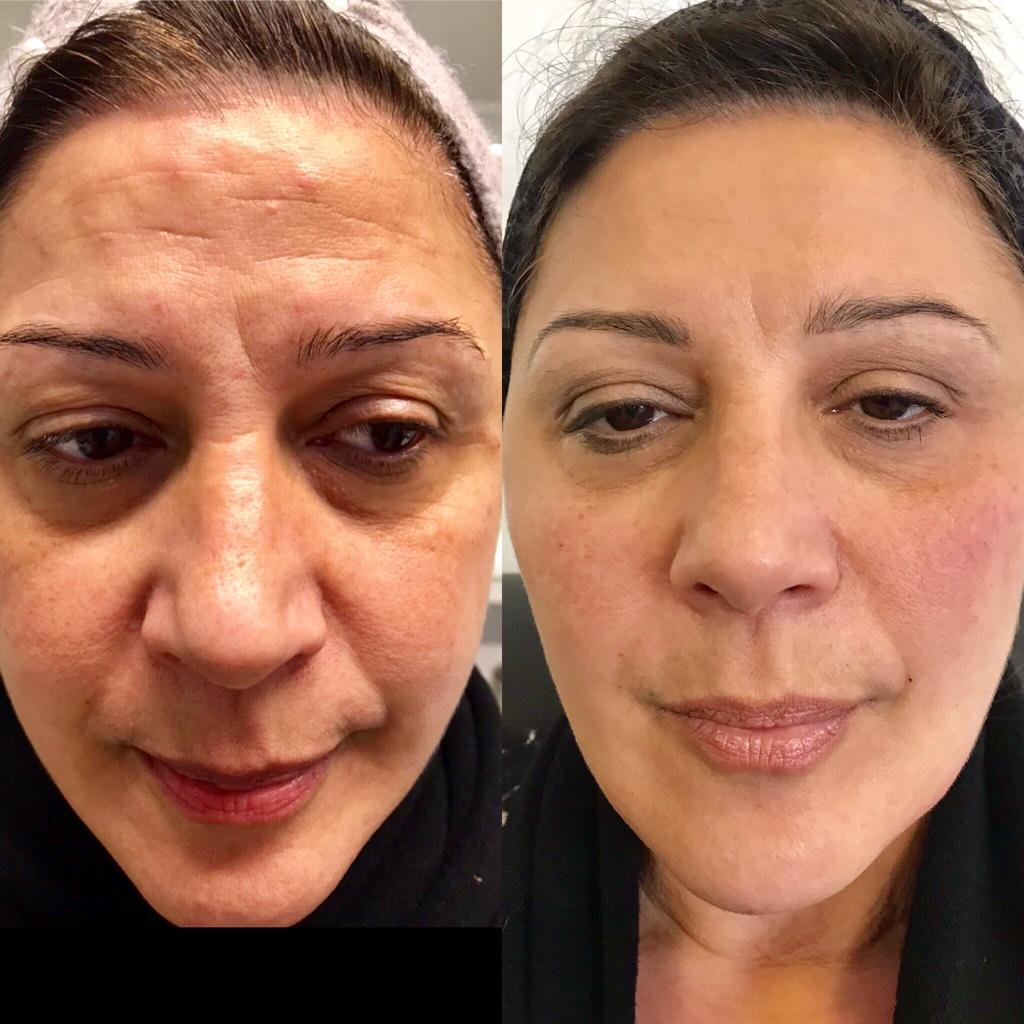 Results of anti-wrinkle treatments in Huddersfield